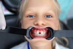 Child Orthodontic Treatment
